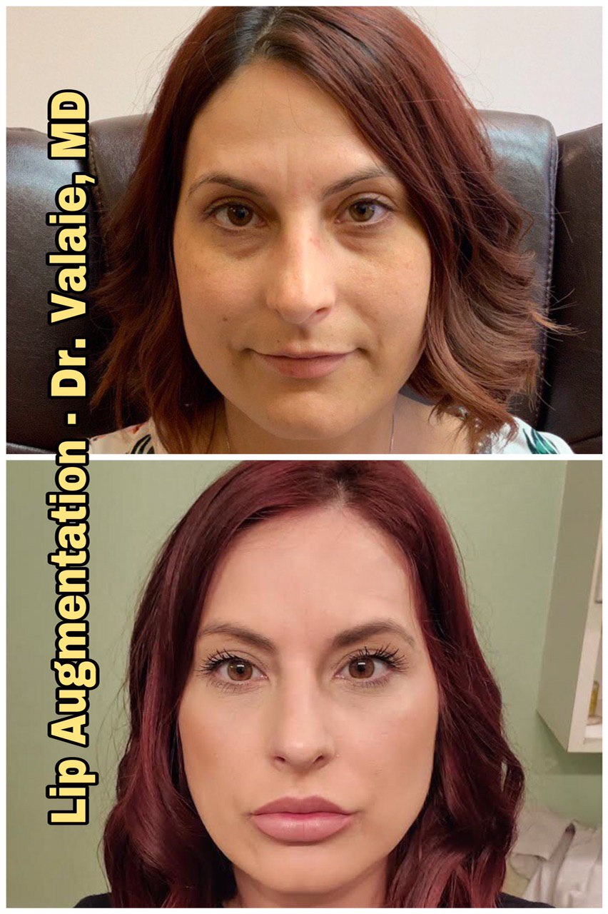 Cheek Augmentation and Cheek Fillers by Dr. Valaie, MD, Cosmetic Surgeon at Newport Beach, Orange County, CA