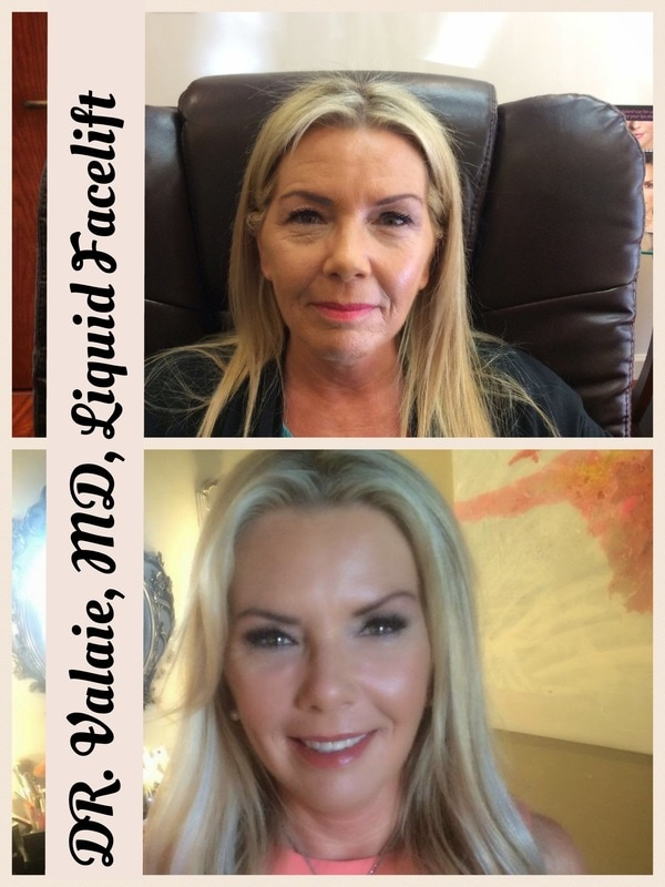 Liquid Facelift by Dr. Valaie, cosmetic surgeon at Newport Beach, Orange County