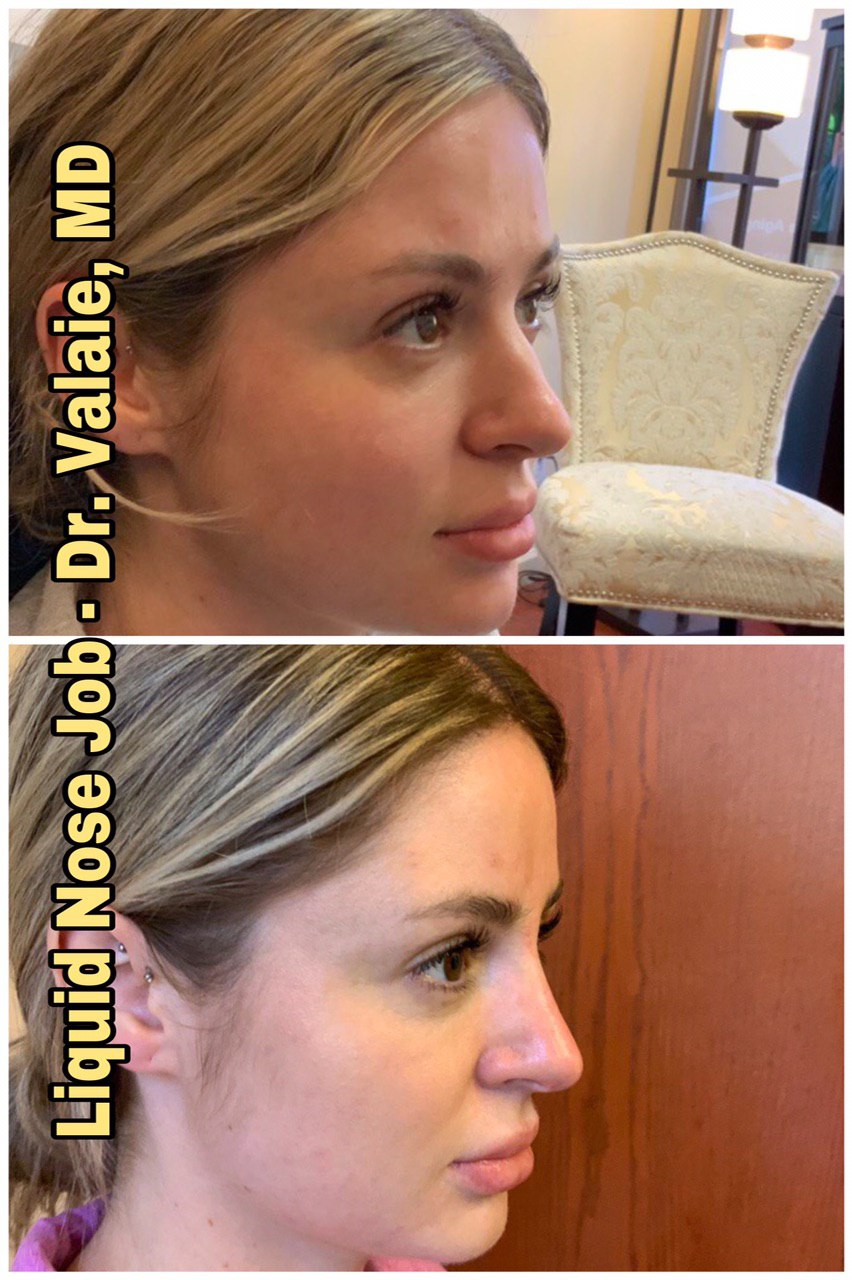 non-surgical nose job (liquid rhinoplasty) Newport Beach, Orange County - Dr. Valaie