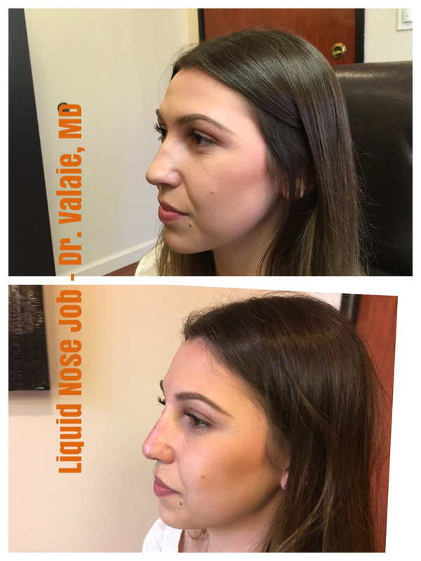 Non-surgical Nose Job (Liquid Nose Job) by Dr. Valaie, MD