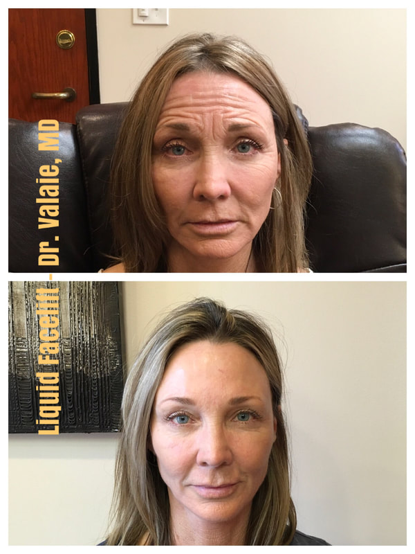 Botox Injection by Dr. Valaie, MD Cosmetic Surgeon, at Newport Beach, Orange County, CA